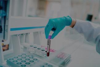 test-sierologici-covid-minihospital-capannoli corona virus