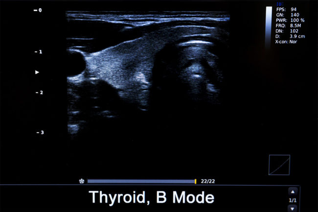 ecografia tiroide pisa minihospital