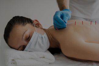 agopuntura-per-quali-applicazioni